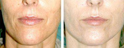биоревитализация кожи лица фото до и после