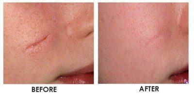 лазерное удаление шрамов на лице фото до и после