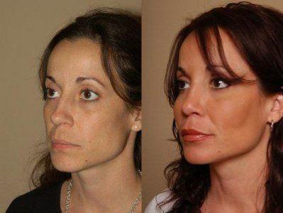 липофилинг лица фото до и после
