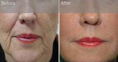 липофилинг носогубных складок фото до и после