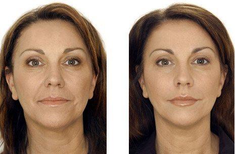 подтяжка лица без операции до и после