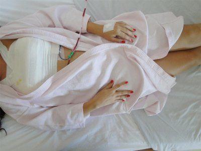 процедура липофилинга молочных желез
