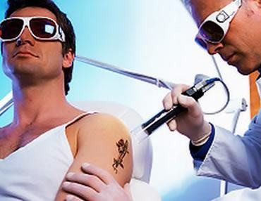 процедура лазерного удаления татуировок