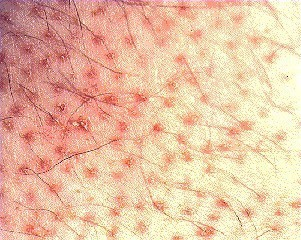 фолликулярный кератоз