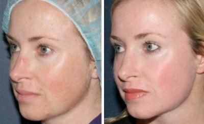 Дот лазерное омоложение реабилитация Озонотерапия волосистой Новогородская улица Чебоксары